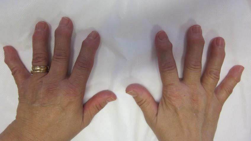 Prevalencia y síntomas de la artrosis